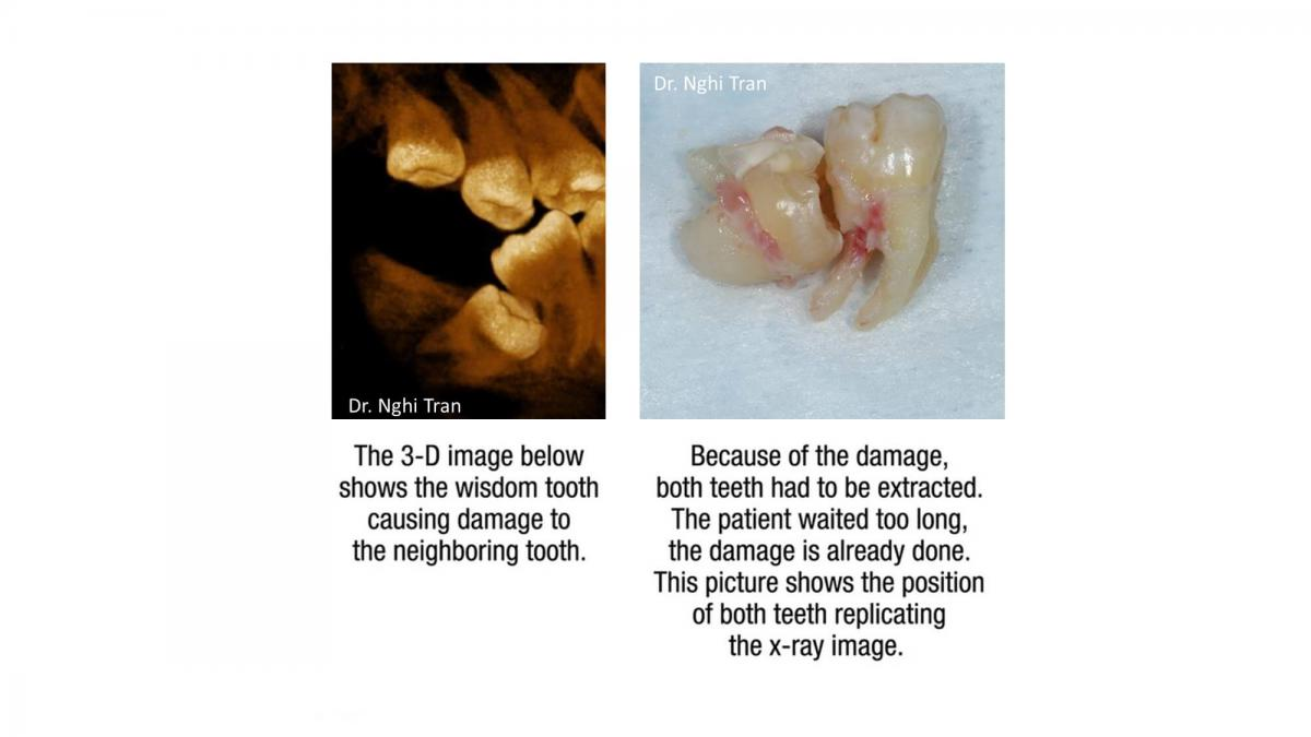 Dental Emergency cases_page-0012