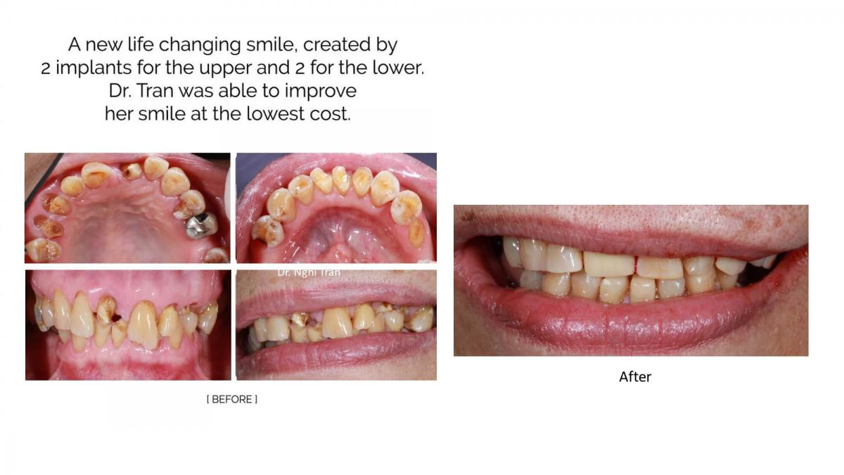 New Implant Dentistry Cases_page-0009