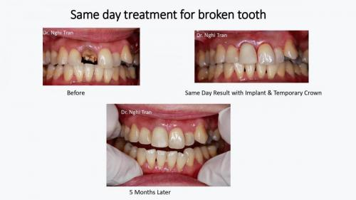Dental Emergency cases_page-0001