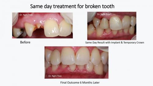 Dental Emergency cases_page-0002