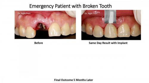 Dental Emergency cases_page-0003