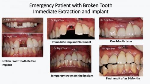 Dental Emergency cases_page-0004