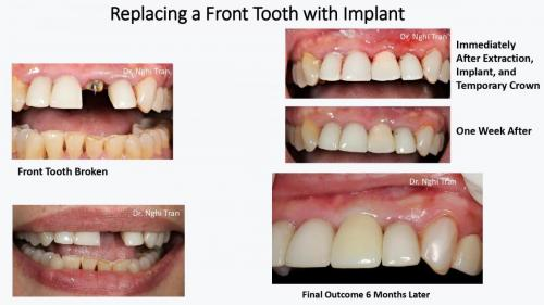 Dental Emergency cases_page-0005