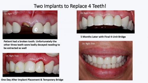 Dental Emergency cases_page-0006