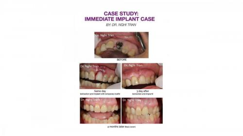 Dental Emergency cases_page-0007