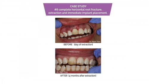 Dental Emergency cases_page-0009