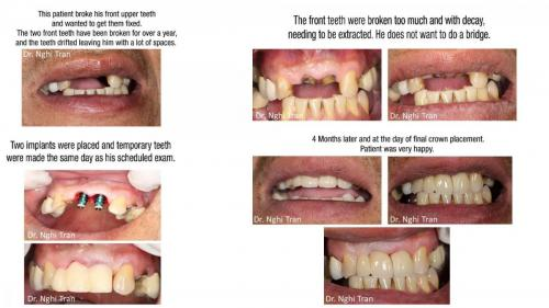 Dental Emergency cases_page-0010