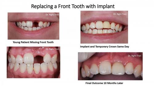 New Implant Dentistry Cases_page-0001
