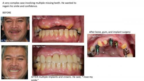 New Implant Dentistry Cases_page-0003