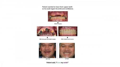 New Implant Dentistry Cases_page-0004