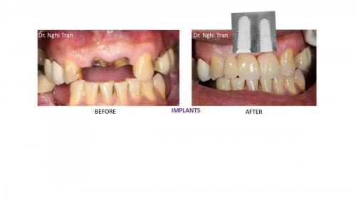 New Implant Dentistry Cases_page-0005