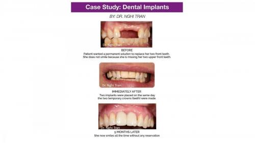 New Implant Dentistry Cases_page-0006