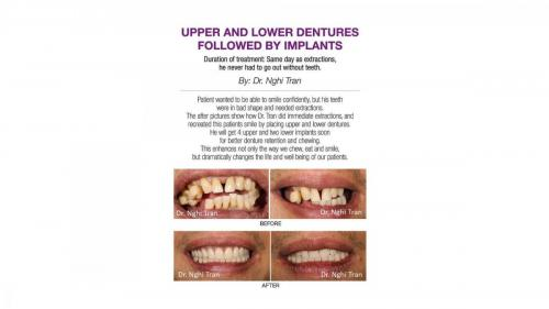 New Implant Dentistry Cases_page-0007