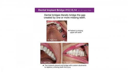 New Implant Dentistry Cases_page-0008